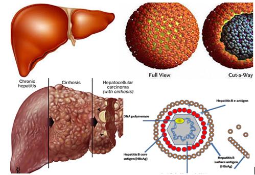 Viêm gan B có thể tiến triển thành xơ gan và ung thư gan