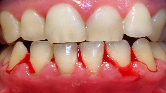 Chảy máu chân răng - một biến chứng thường gặp ở người bệnh tiểu đường