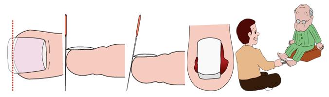Chăm sóc móng chân - Chăm sóc bàn chân ở bệnh nhân đái tháo đường (Ảnh Internet)