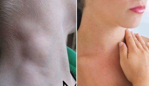 Dấu hiệu nguy hiểm nổi hạch to vùng cổ cảnh báo nguy cơ ung thư tuyến giáp