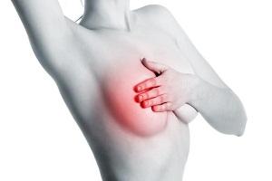 Đau vú bên phải là dấu hiệu của bệnh gì?