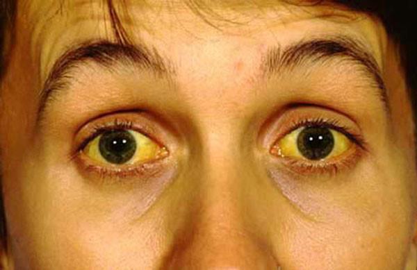 Triệu chứng vàng da, vàng mắt ở người bệnh viêm gan B