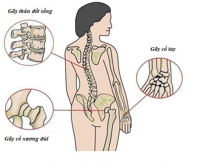Những vị trí thường bị gãy do loãng xương