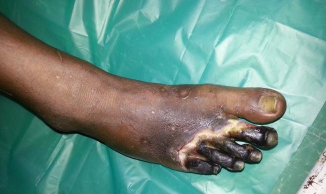 Biến chứng hoại tử bàn chân của bệnh đái tháo đường