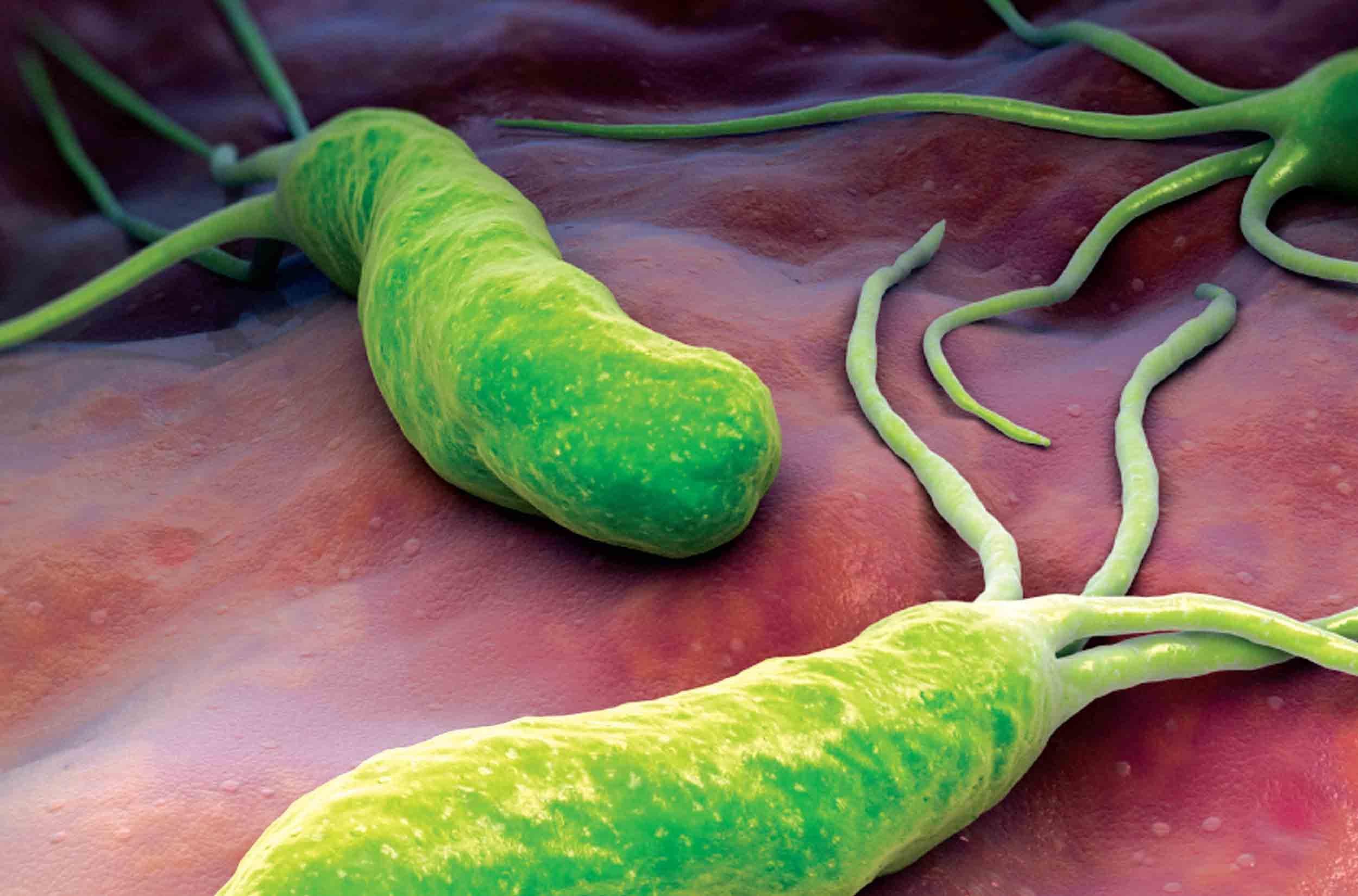 Vi khuẩn HP là tác nhân chính gây bệnh viêm loét dạ dày