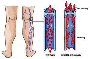 Huyết khối tĩnh mạch sâu(nguồn: internet)