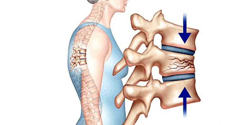 Lún xẹp đốt sống là biến chứng của loãng xương khá phổ biến