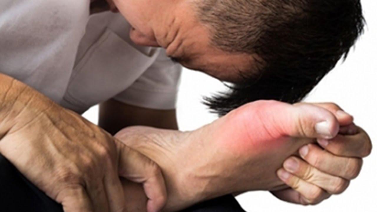 Bệnh gout gây đau đớn cho người mắc