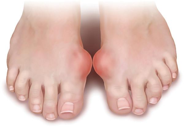 Chân của người bệnh gout