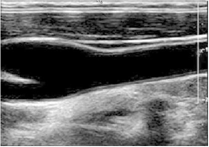 Hình ảnh siêu âm động mạch cảnh bình thường: lớp nội mạc trơn nhẵn, đều đặn