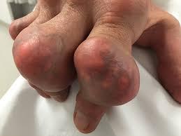 Các tophi trên ngón tay