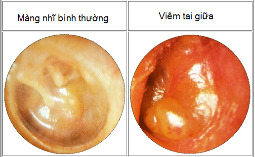 Hình ảnh viêm tai giữa khi soi tai (Ảnh Internet)