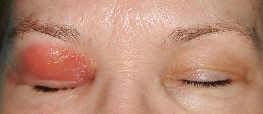 Biến chứng mắt của viêm xoang