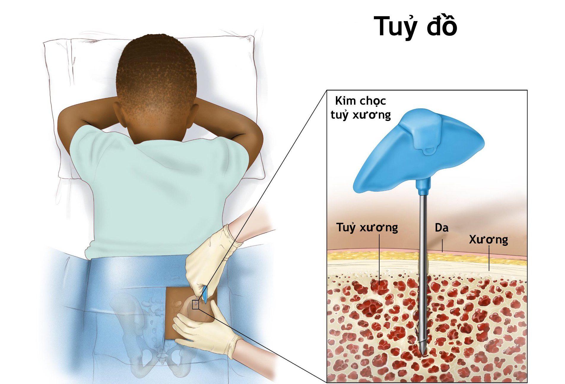 Phương pháp lấy tủy xương làm tủy đồ