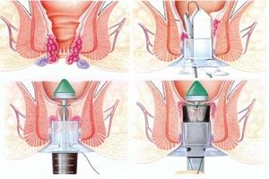 Phẫu thuật cắt trĩ bằng phương pháp Longo