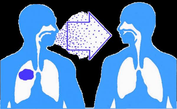 phòng chống lao phổi lây lan trong cộng đồng