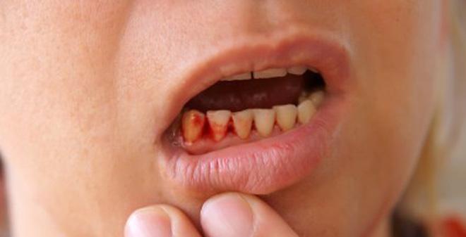 Chảy máu chân răng là một trong những triệu chứng của ung thư máu cấp.