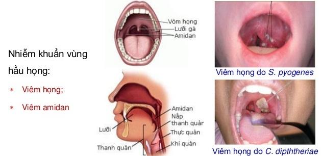 Nhiễm khuẩn đường hô hấp là một trong các nguyên nhân gây ho ở trẻ