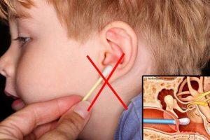 Không dùng tăm bông vệ sinh tai cho trẻ viêm tai giữa