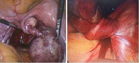 Các nang bị xoắn lại với nhau - biến chứng nguy hiểm của u nang buồng trứng