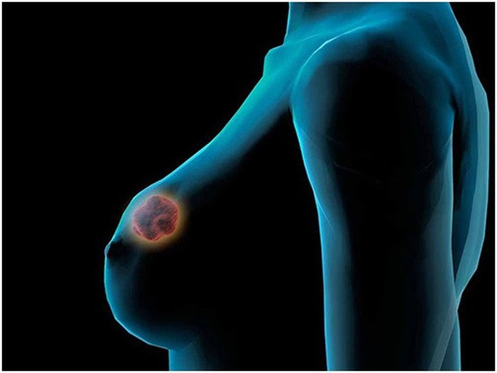 Tế bào ung thư vú có thể lan tràn khắp cơ thể.