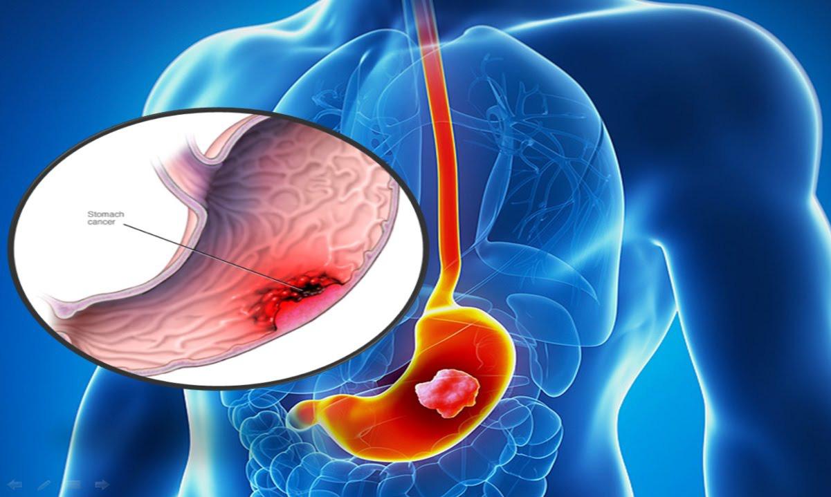 Ung thư dạ dày là bệnh ác tính của dạ dày.