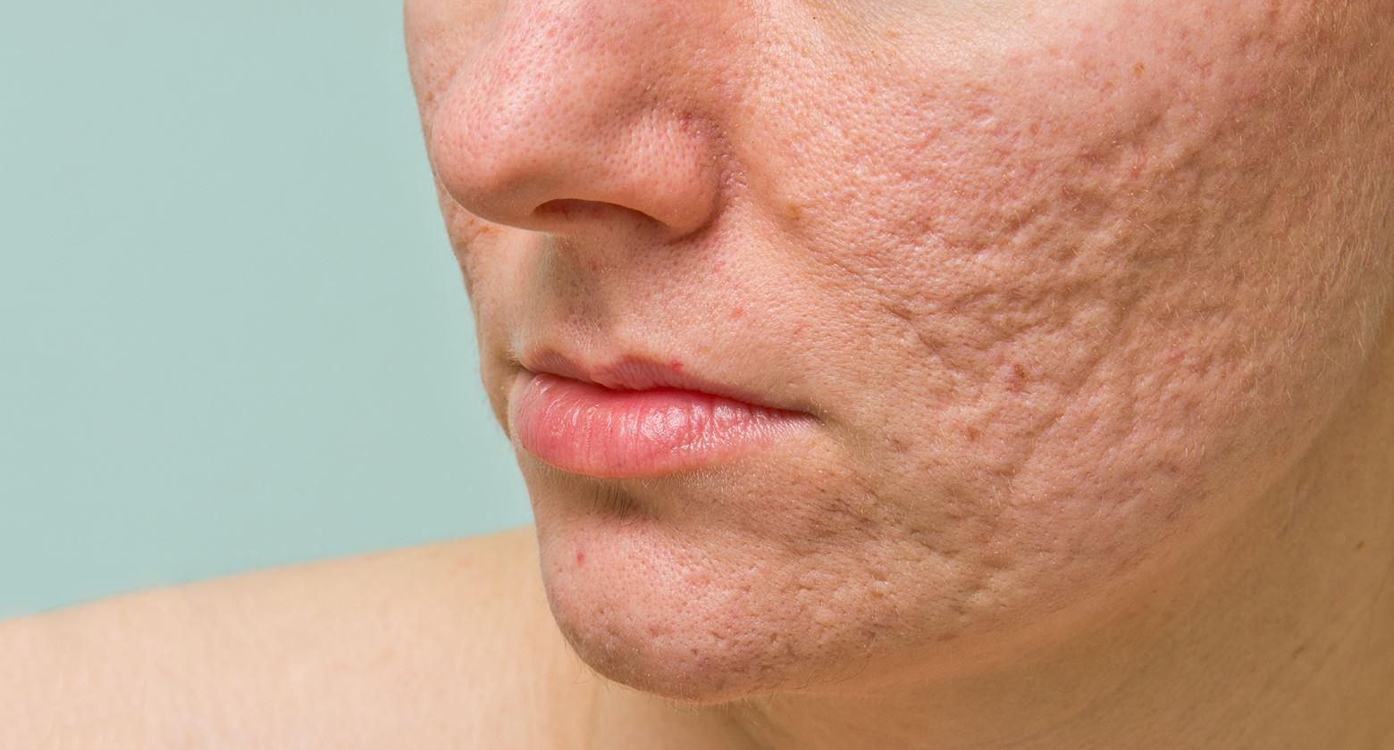 Áp dụng sai cách trị mụn trứng cá có thể để lại sẹo trên da