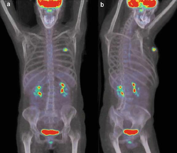 Chụp PET/CT phát hiện ung thư di căn.