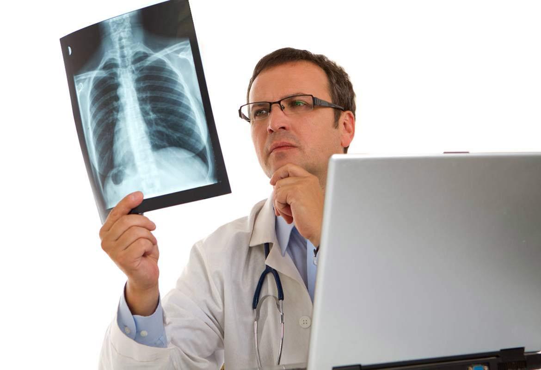 Chụp X-Quang ngực giúp phát hiện ung thư vú di căn phổi.