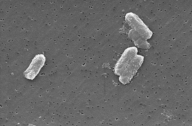 Enterobacteriaceae là một nhóm vi khuẩn lớn, đa dạng sinh sống trong ruột con người