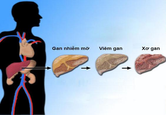 Quá trình gan nhiễm mỡ biến chứng thành xơ gan