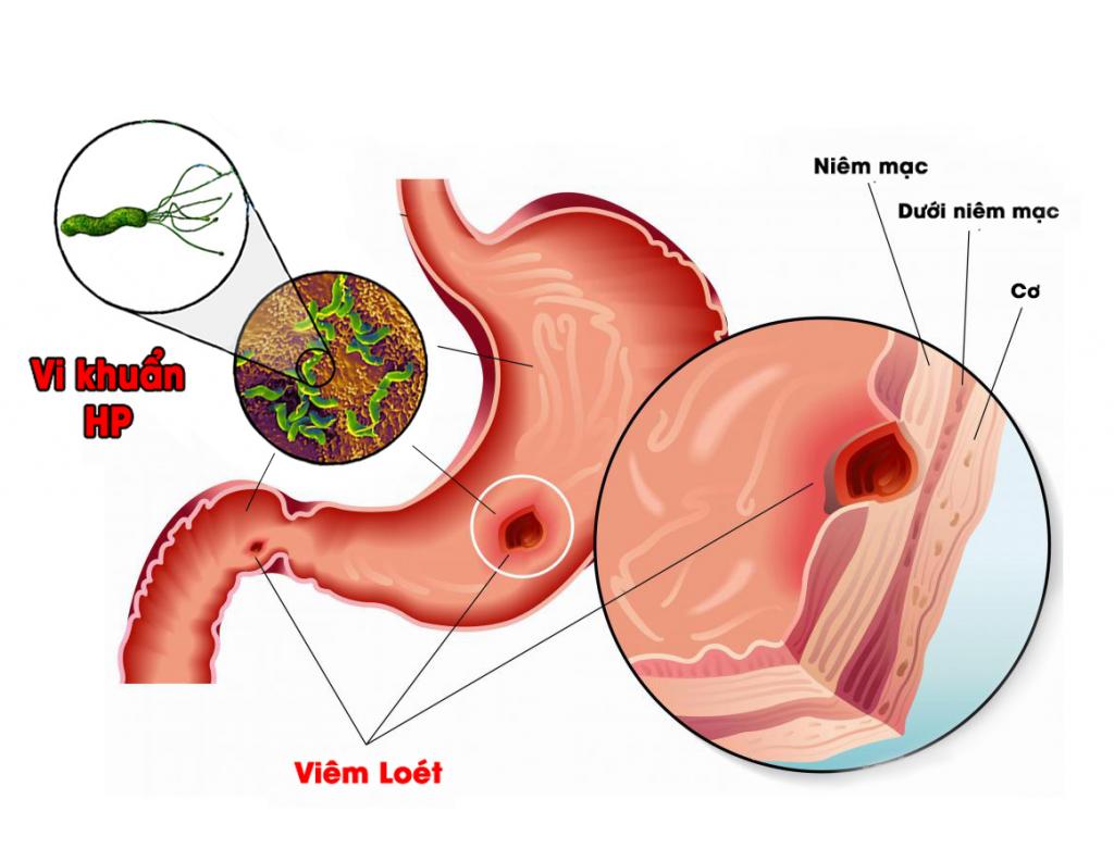 Triệu chứng viêm loét dạ dày hiếm gặp