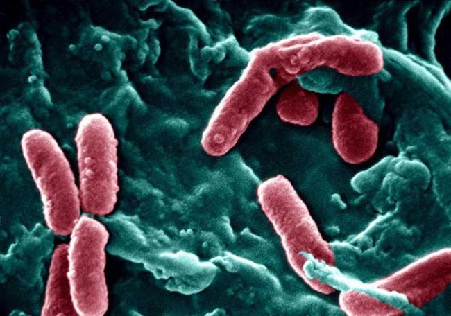 P.aeruginosa là một trong những nguyên nhân hàng đầu gây nhiễm khuẩn bệnh viện