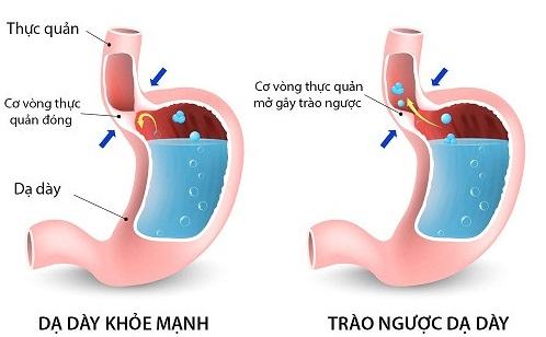 Đau dạ dày có thể là triệu chứngtrào ngược dạ dày thực quản (GERD)