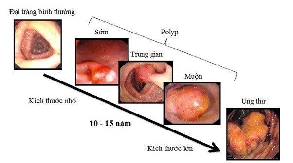Các giai đoạn phát triển từ hội chứng đa polyp đến ung thư đại trực tràng