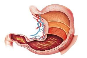 Biến chứng viêm dạ dày cấp