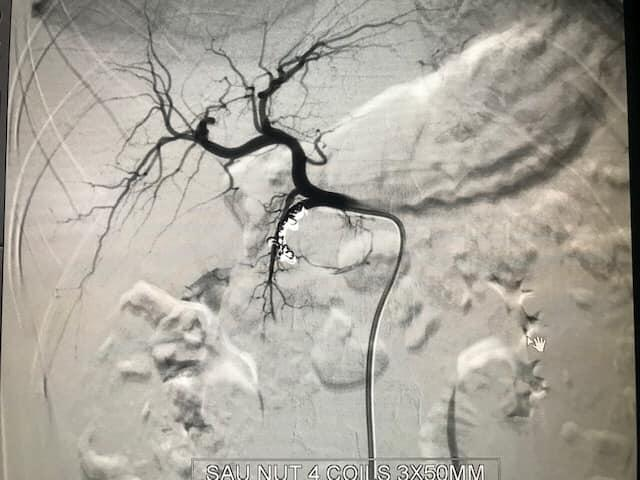 Hình ảnh sau nút mạch cho bệnh nhân