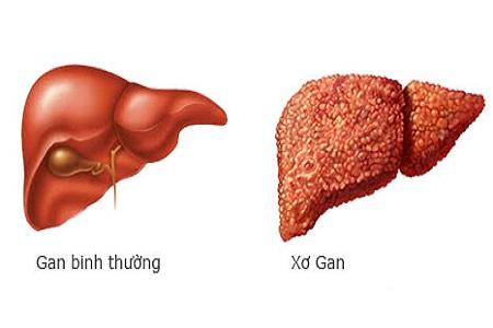 Biến chứng xơ gan của gan nhiễm mỡ