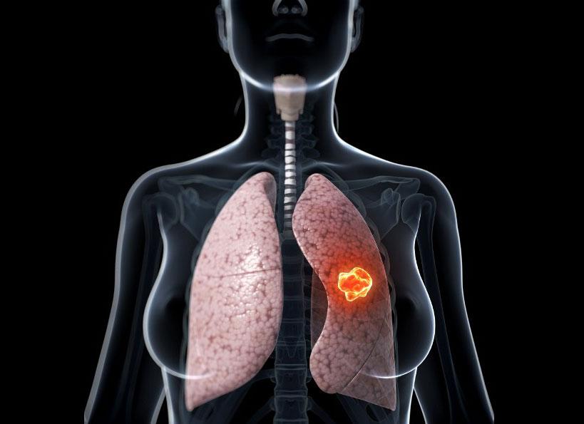Khối u phổi trong ung thư phổi