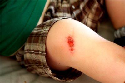 Vết thương của trẻ lâu lành cũng là một dấu hiệu cho thấy trẻ có sức đề kháng yếu
