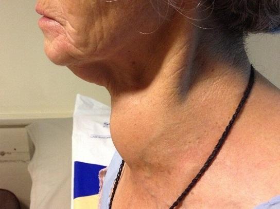 Bướu giáp keo to quá có thể gây biến dạng cổ, chèn ép vào xung quanh gây khó thở