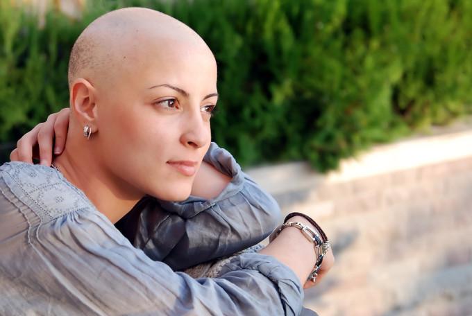 Rụng tóc do hóa trị điều trị ung thư phổi