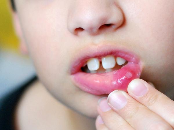 Biểu hiện của nhiệt miệng ở trẻ em