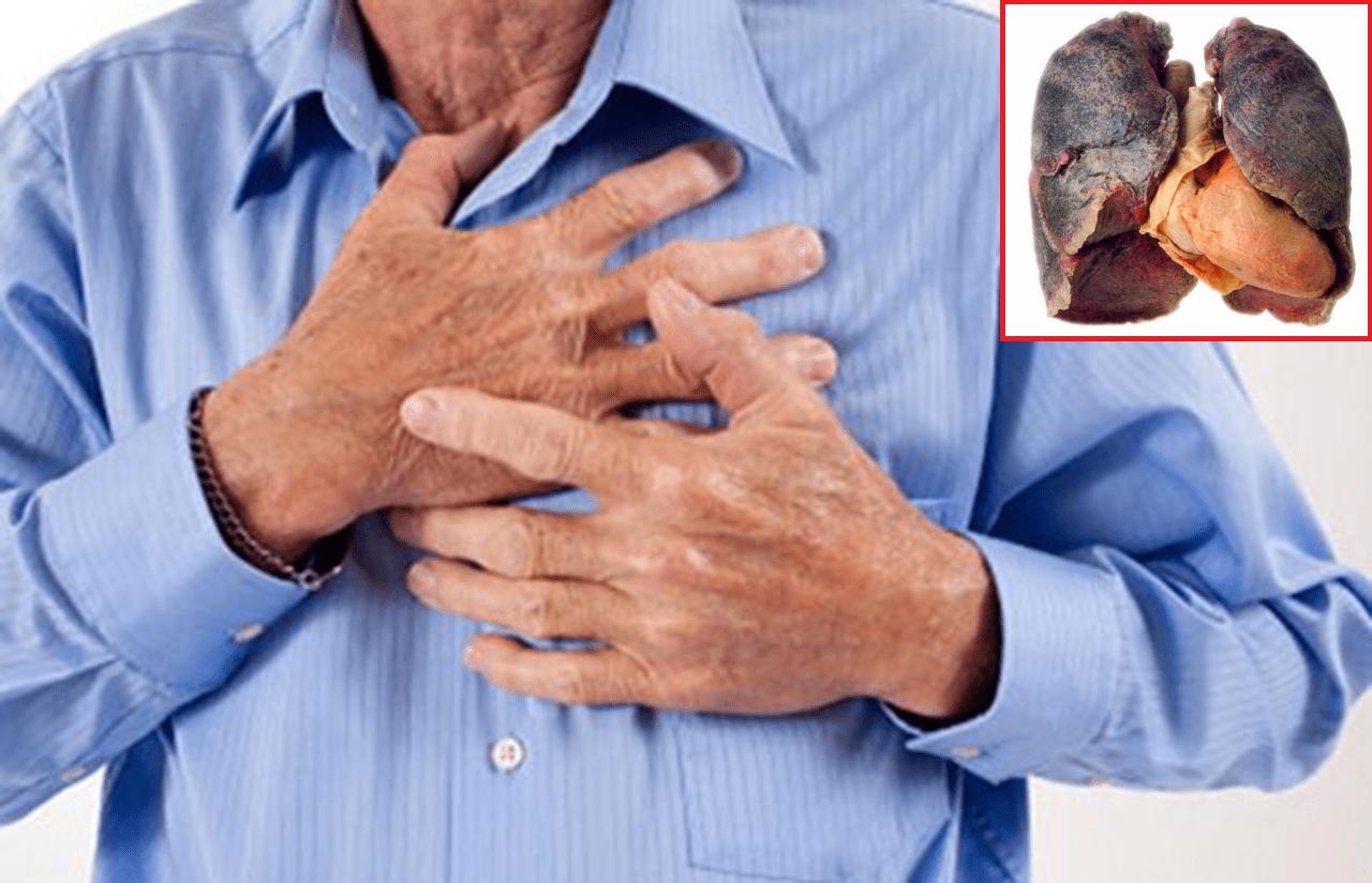 Đau ngực là một trong các triệu chứng ung thư phổi