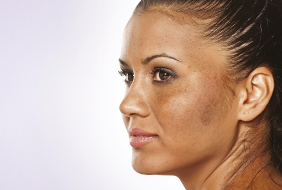 Nám da là bệnh tăng sắc tố phổ biến ở phụ nữ
