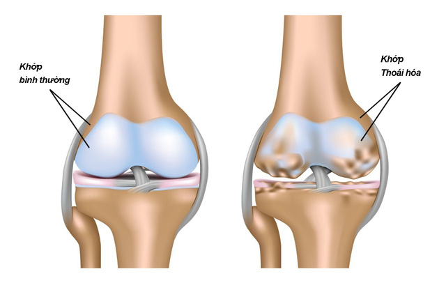 Thoái hóa khớp gối có triệu chứng đau khớp gối
