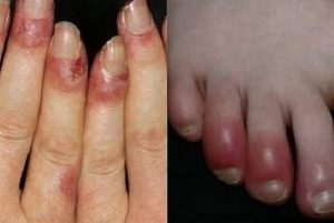 Hình ảnh bệnh nhân bị cước tay, chân. (Ảnh Internet)