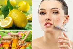 5 cách trị mụn thâm từ nguyên liệu tự nhiên