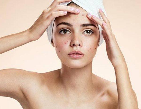 Cách dưỡng da như thế nào tốt cho da mụn (Ảnh: Internet)