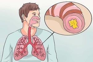 Kháng sinh trong điều trị viêm phế quản